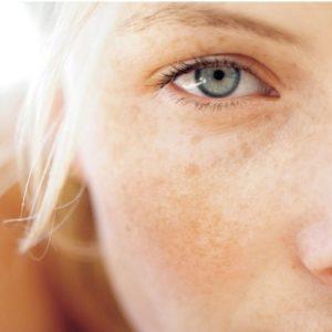 Tratamiento hiperpigmentacion